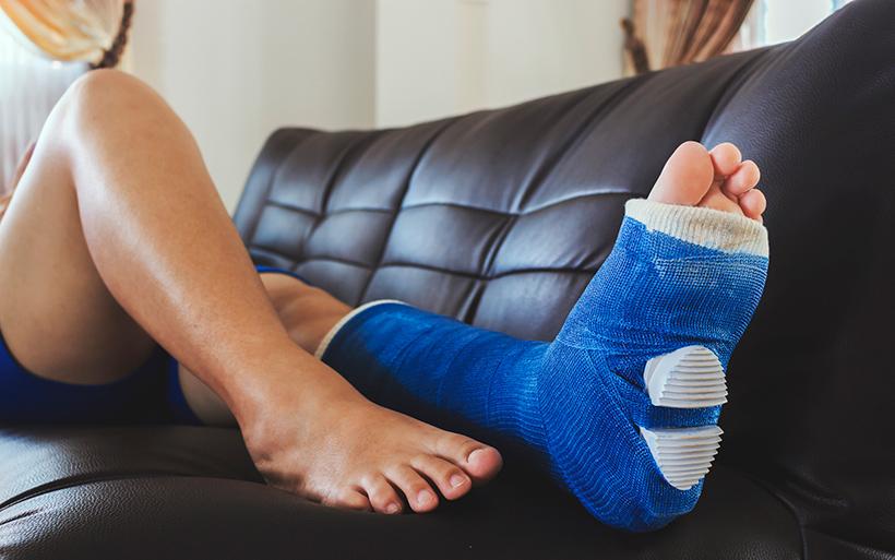 Picture of a broken foot
