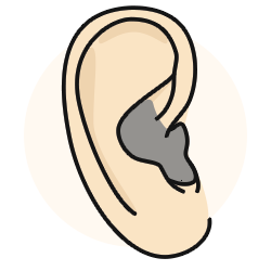 In the ear canal hearing aids work well for moderate sensorineural hearing loss.